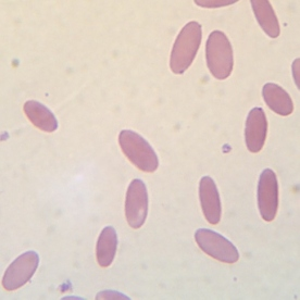 Red Blood Cells – Clinical pathology
